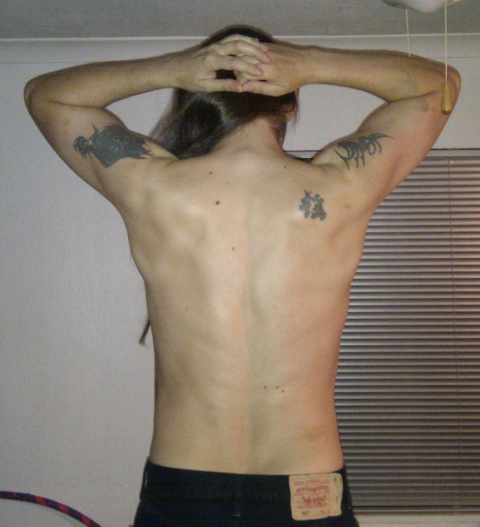 Photo of my back, tensed, one year ago