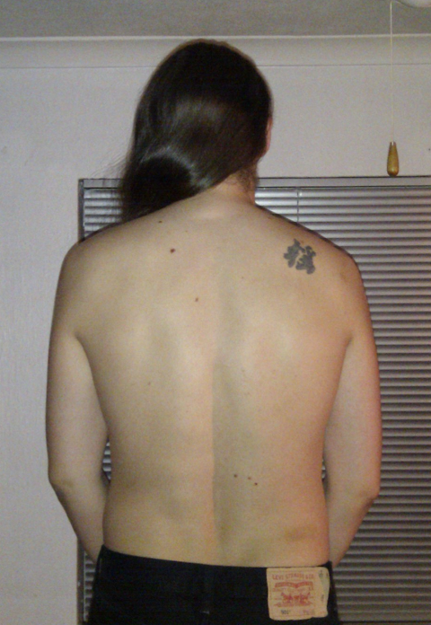 Photo of my back, one year ago