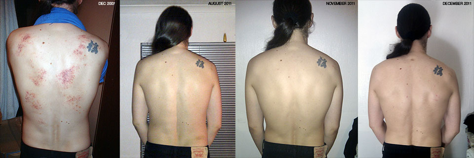 Montage of relaxed back photos.